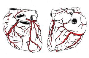 Przezskórna transluminarna plastyka naczyń wieńcowych (PTCA)